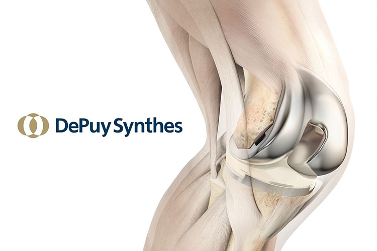 Jj And Doctors Differ In Opinion On Depuy Attune Knee Safety
